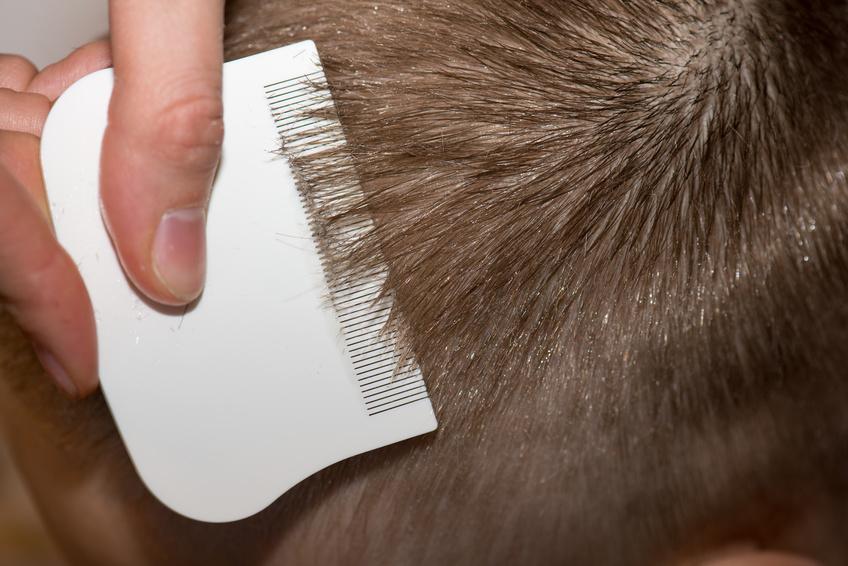 Juckende Kopfhaut Friseurcom