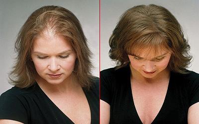 Physikalischer Haarersatz Friseurcom