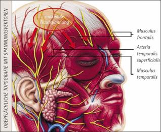 Spannungshaarausfall Alopecia Contentionalis Ursachen Und