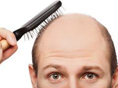 Haarausfall Friseur Com