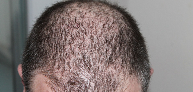Haarausfall Friseurcom