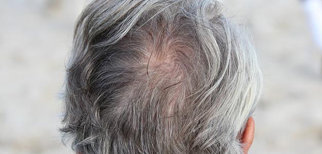 Haare farben und haarausfall